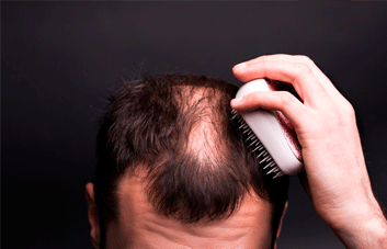 O que é alopecia? O que causa a alopecia?