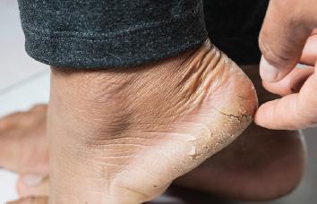 Como acabar com as rachaduras dos pés
