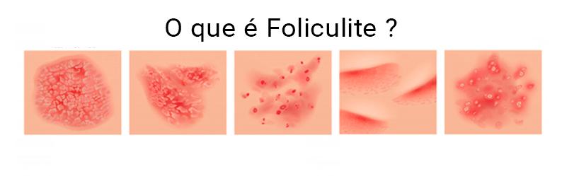 O que é foliculite? Conheça as causas, sinais e sintomas