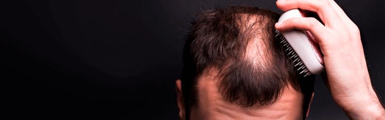 Como tratar alopecia: Conheça o melhor tratamento