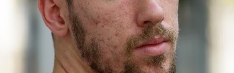 Pele acneica: como cuidar