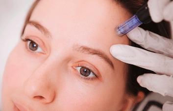 Microagulhamento facial: Conheça os benefícios e para que serve