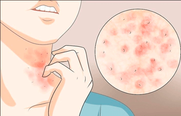 Como tratar foliculite?
