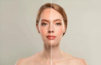 5 maneiras de como clarear a pele