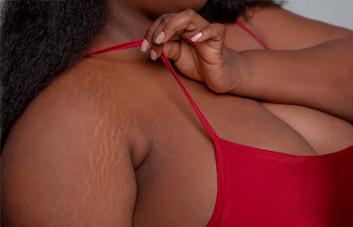 Tratamento para estrias: como cuidar deste problema?